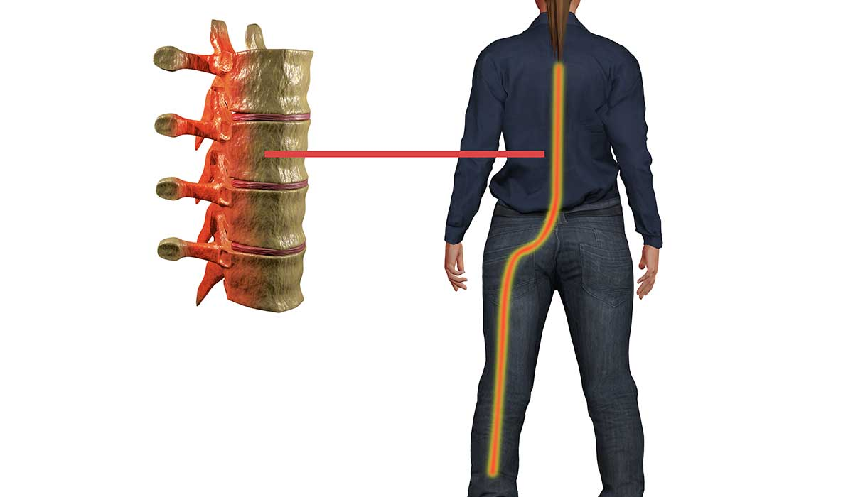 Sciatica Treatment and Conservative Solutions